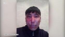 «Это акция устрашения». Балхашский активист заявил об избиении