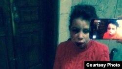 Тетяна Чорновол побита невідомими, 25 грудня 2013 року