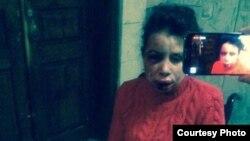 Тетяна Чорновол, побита невідомими, 25 грудня 2013 року