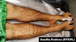 Ադրբեջան – Ենթադրաբար բանտում խոշտանգումների հետեւանքով մահացած Սեյմուր Միխաիլովի մարմինը, 2012 թ․