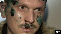 Jedan od navodnih atentatora Adam Osmayev