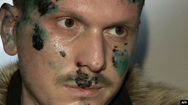 Adam Osmayev is suspected of conspiring to kill Vladimir Putin. (Screen grab from Russian TV)
