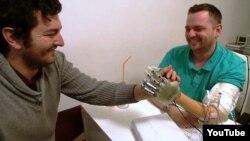 Бионикалық протез үлгісін киіп алған пациент Деннис Аабо Соренсен (оң жақта) мен дәрігер Сильвестро Мичера.