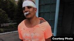 Владилен Бугаев после нападения