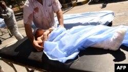 Սիրիա - Վիրավոր երեխային տեղափոխում են հիվանդանոց, 28-ը սեպտեմբերի, 2016թ․