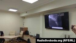 Бекірову імплантували два стенти