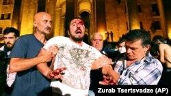 Sukobi tokom protesta u Tbilisiju zbog ruskog zastupnika u parlamentu