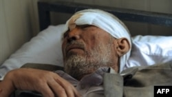 An Afghan man, one of more than 140 people injured in the Kabul embassy attack on July 7