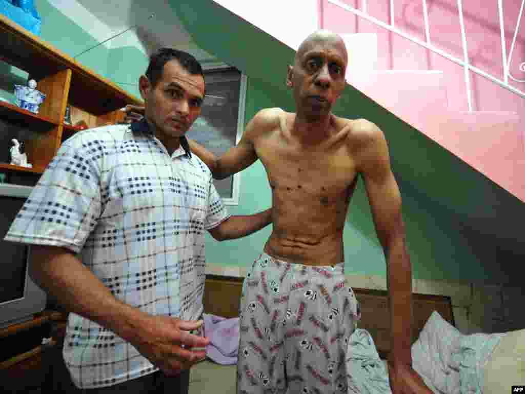 Куба: апазыцыйны актывіст пасьля 135-дзённай галадоўкі, якую ён спыніў пасьля таго, як урад выпусьціў 52 палітвязьняў