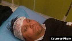 Градоначалникот на Шуто Оризари, Елвис Бајрам, е повреден во тепачка меѓу две групи.