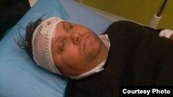 Градоначалникот на Шуто Оризари, Елвис Бајрам, е повреден во тепачка меѓу две групи. Фото: Алсат-М