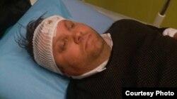 Илустрација - градоначалникот на Шуто Оризари, Елвис Бајрам повреден во тепачка меѓу две групи. Фото: Алсат-М