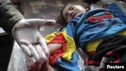 پزشکی در یک بیمارستان موقت در حمص گلولهای را که از دست یک کودک خارج کرده نشان میدهد. ۸ مارس ۲۰۱۲.