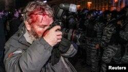 Фоторепортер агентства Reuters Глеб Гаранич также получил ранения в ходе разгона милицией акции протеста на Майдане Незалежности. Киев, 30 ноября 2013 года.