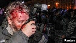 Фотограф Reuters Гліб Гараніч, який також постраждав під час нічного розгону Майдану 30 листопада 2013 року
