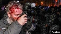 Фотограф Reuters Гліб Гараніч, який також постраждав під час кривавого нічного розгону Майдану 30 листопада 2013 року