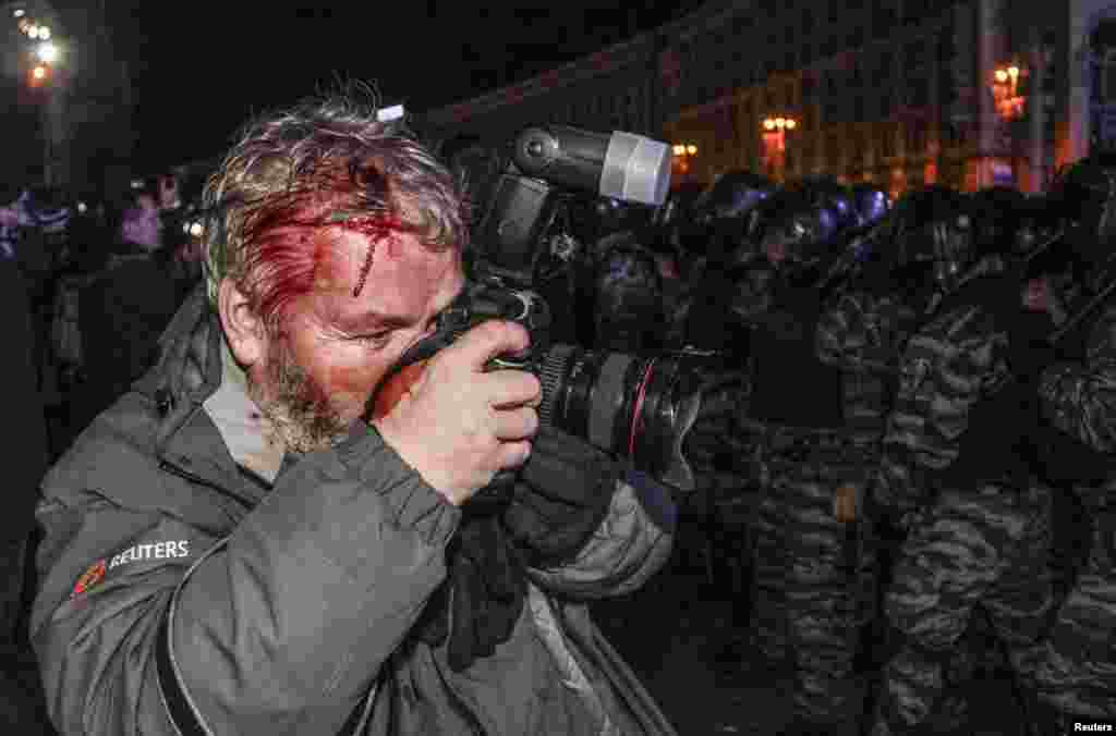Wounded Reuters photographer Gleb Garanich, who was injured by riot police, takes pictures during a protest on Independence Square.
