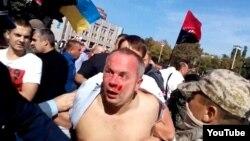 Нестор Шуфрич после избиения в Одессе