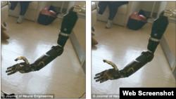 Yeni protez