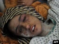 15-летняя Сахар Гуль в больнице после избиений ее мужем и шести месяцев заточения в туалете в подвале. Кабул, 12 января 2012 года.