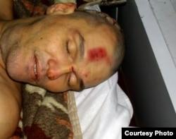Тело Шамиля Ярославлева со следами от ран. 5 ноября 2011 года.