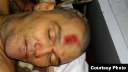 Қарағанды облысындағы Долинка түрмесінде қаза болған тұтқын Шәміл Ярославлев. 5 қараша 2011 жыл.
