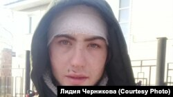 Избитый при задержании ГИБДД Юрий Ямашкин из Куйтуна