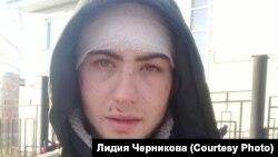 Избитый при задержании Юрий Ямашкин из Куйтуна