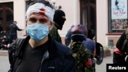 Раненый участник одесского Антимайдана во время столкновений 2 мая