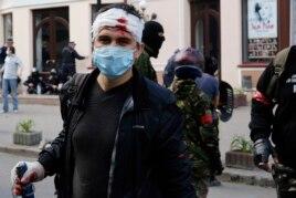 Ресейшілдер мен Украинаның біртұтастығын қолдайтындар арасындағы қақтығыста жараланған жігіт. Одесса, 2 мамыр 2014 жыл.