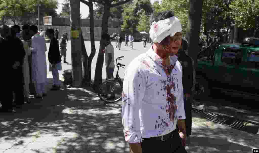 A man who was injured in the blast leaves the scene after getting first aid.