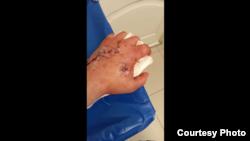 Сломанная рука Ивана будет заживать минимум 6 месяцев