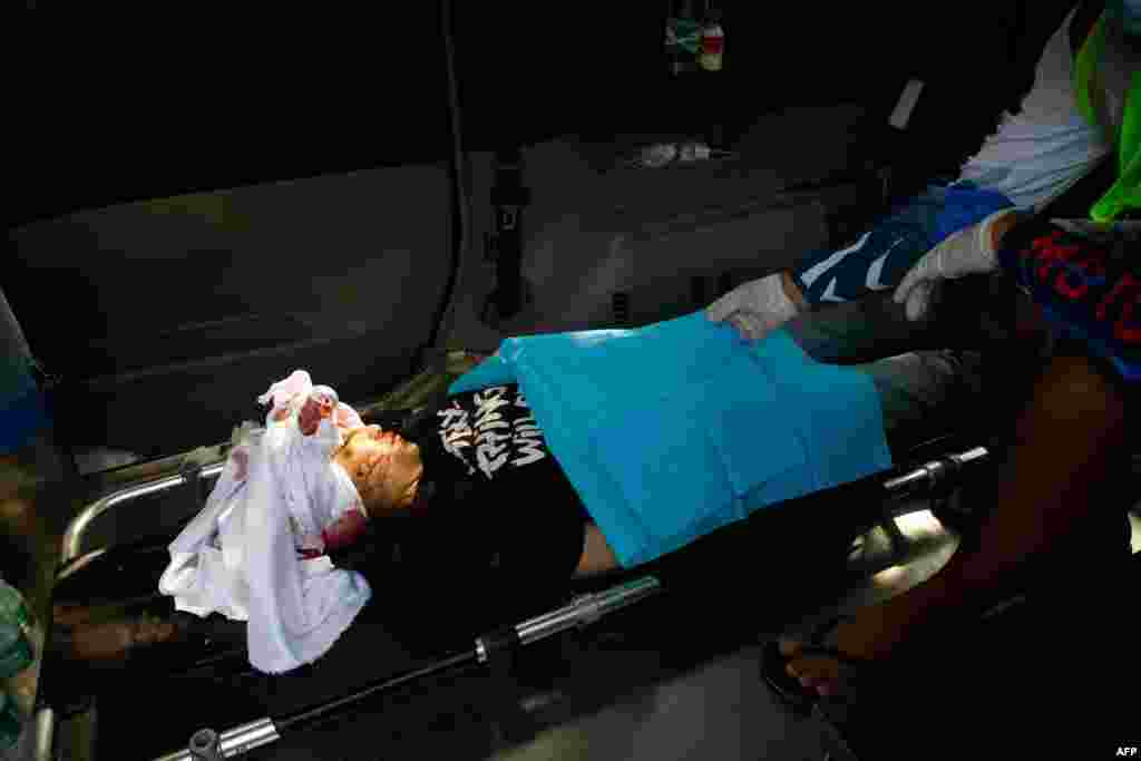Graphic content / The body of Kyal Sin, also known by her Chinese name Deng Jia Xi, lays in an ambulance after being shot in the head during a demonstration against the military coup in Mandalay on March 3, 2021.
