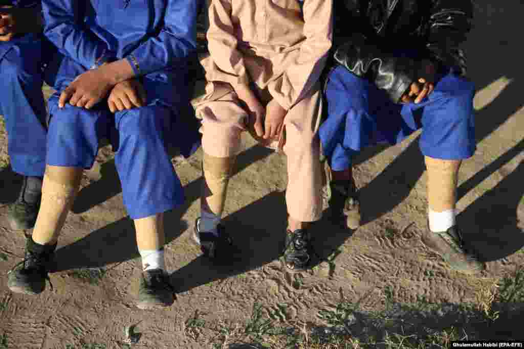 Afghan members of the same family who lost their limbs in a land-mine blast while playing near their house pose for a photograph as the world observed International Day of Disabled Persons in Nangarhar Province, Afghanistan, on December 3. (epa-EFE/Ghulamullah Habibi)