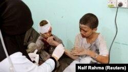 Постраждалі в бомбардуванні діти, провінція Саада, Ємен 9 серпня 2018 року