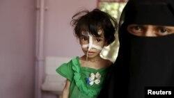 Женщина с ребенком, пострадавшим от недоедания, в госпитале в Сане, 28 июля 2015 года.