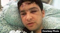 8 мая. Далер Шарипов на больничной койке в Кара-Боло