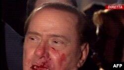 Berluskoni bazar günü Milanda avtoqraf paylayarkən bir nəfər ona hücum edərək 2 dişini və burnunu sındırıb