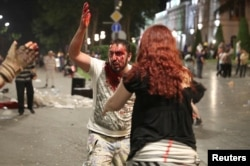 Травмированный участник протеста в Грузии, 21 июня 2019 года
