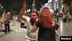 Один из участников протеста, вероятно, получивший ранение в результате применения полицией резиновых пуль для разгона демонстрации. Тбилиси, 21 июня 2019 года.
