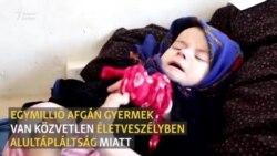 Egymillió afgán gyermek van közvetlen életveszélyben alultápláltság miatt
