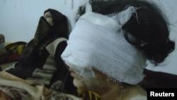 Раненная в столкновениях девушка. Окрестности Хомса, 6 февраля 2012 года.