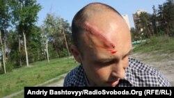 Віталія Лазебника побили під час зйомки на початку травня