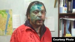"""Andrei Yurov says two masked men hit him and splashed the indelible green antiseptic known as """"zelyonka"""" on his face."""