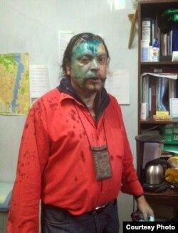 Андрэй Юраў пасьля нападу