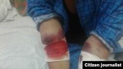 По данным российских врачей, 69 узбекистанцев отравились пестицидом Зоокумарин, который приостанавливает свертываемость крови и вызывает кровотечения.