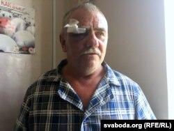 Аляксандар Бяльчук пасьля канфлікту з АМАПам знаходзіўся ў лякарні. Цяпер – у СІЗА