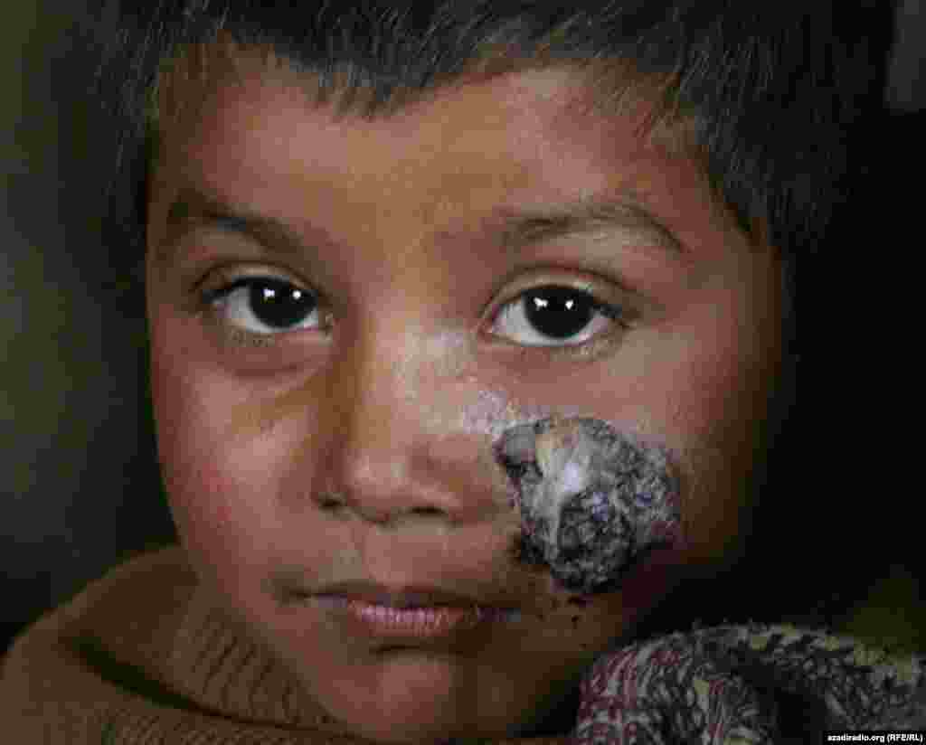 A wounded child at a UN camp. Photo by RFE/RL's Radio Free Afghanistan - The study, in which researchers surveyed over 1,000 children in the country's north, also found that one in ten children reported having been beaten by relatives or neighbors, had undergone painful medical treatments, or suffered accidents.