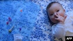Бебе со Даунов синдром