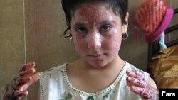 یک دختر دانش آموز در آتش سوزی کلاس درس در روستای درودزن از ناحیه دست ها و صورت دچار سوختگی شده است.